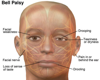 bell-palsy